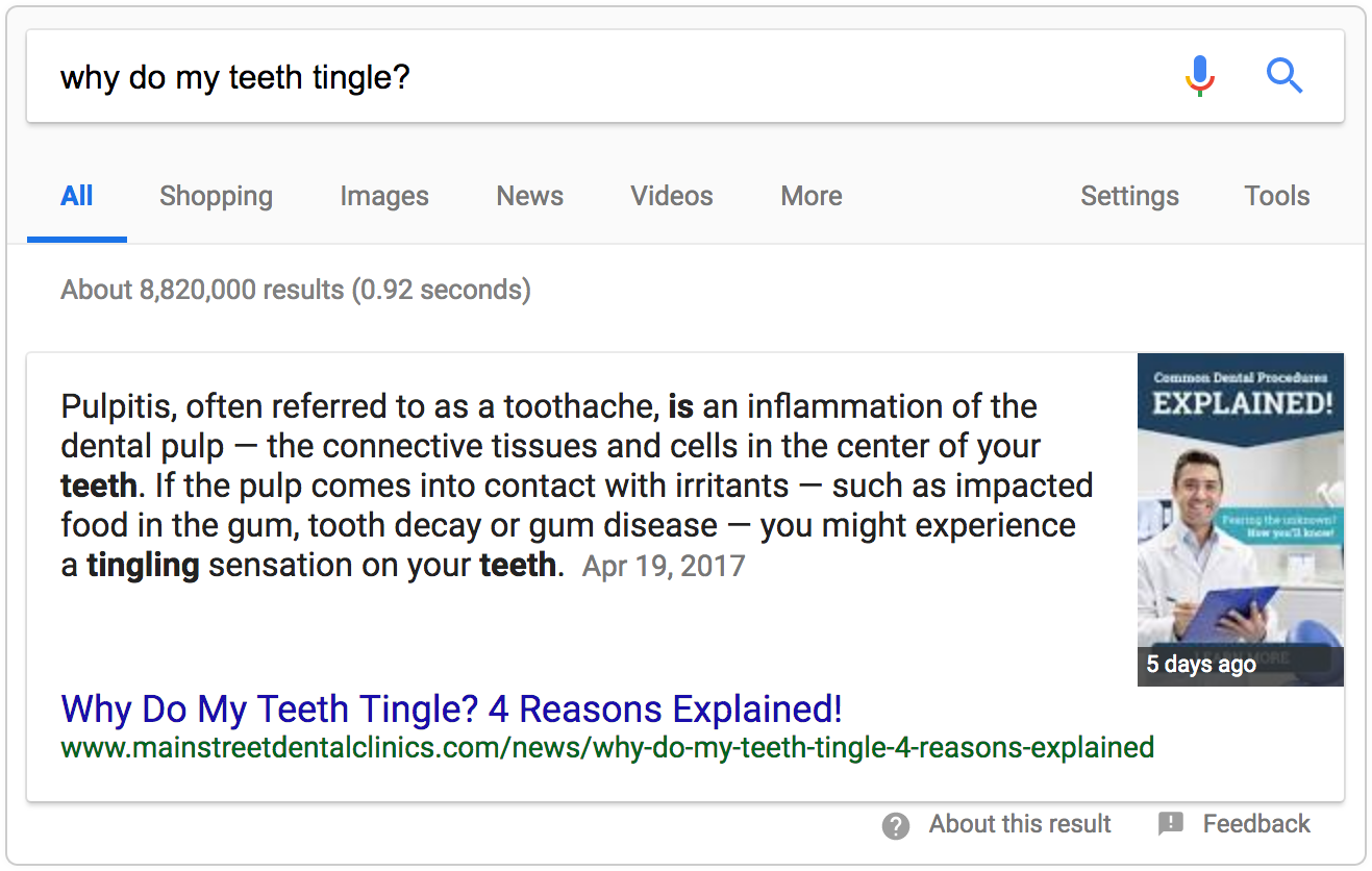 Why Do My Teeth Tingle Google Snippet